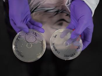 A researcher holds two samples of bacteria